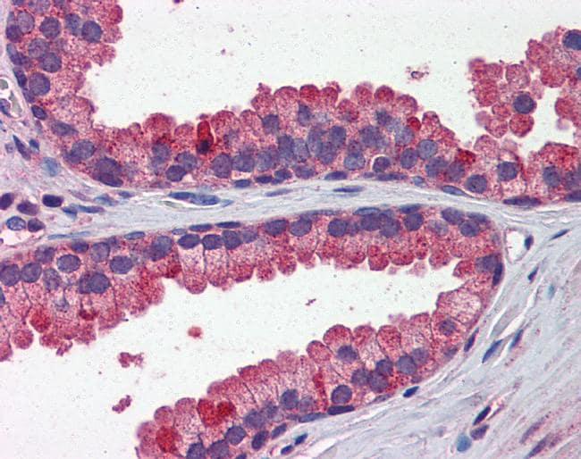 WNT3A Antibody in Immunohistochemistry (IHC)
