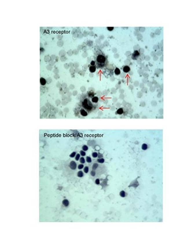 ADORA3 Antibody in Immunohistochemistry (IHC)