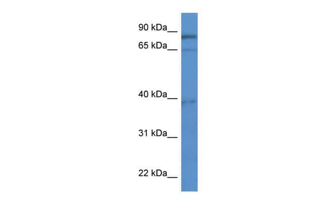 ZCCHC7 Antibody in Western Blot (WB)