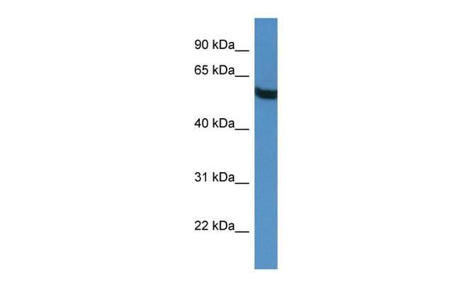 TBC1D10A Antibody in Western Blot (WB)
