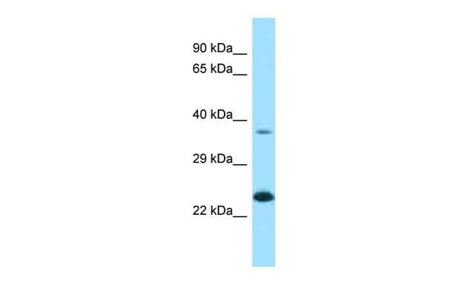 UCC1 Antibody in Western Blot (WB)