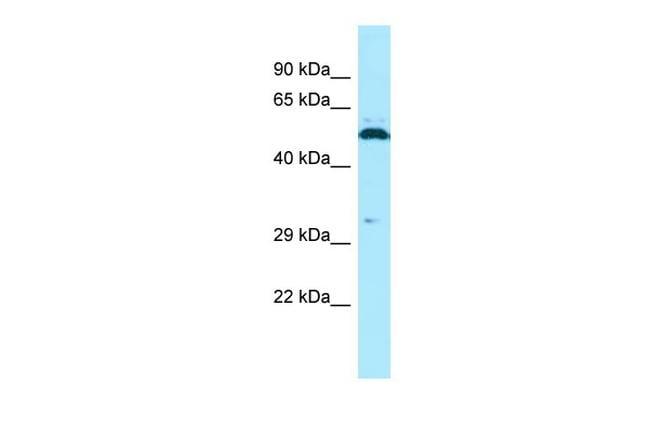 SPAM1 Antibody in Western Blot (WB)