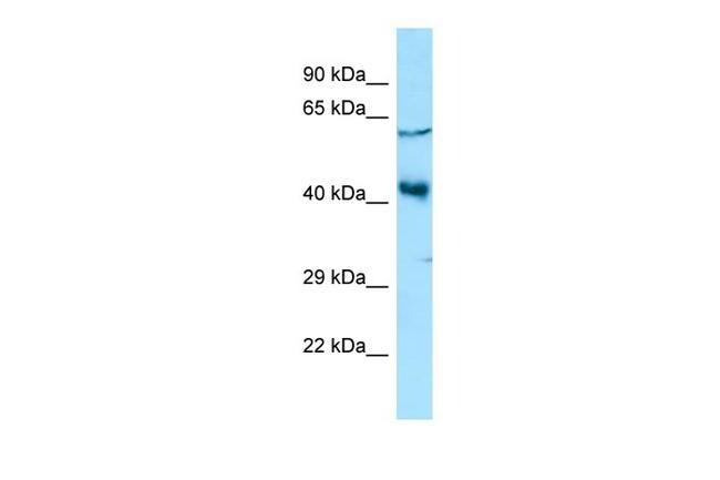 YY2 Antibody in Western Blot (WB)