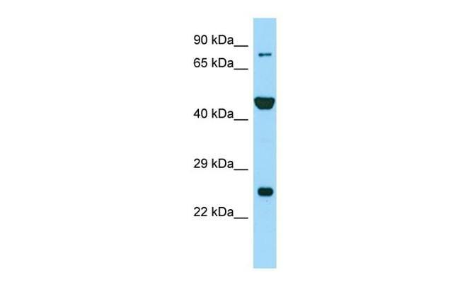PADI6 Antibody in Western Blot (WB)