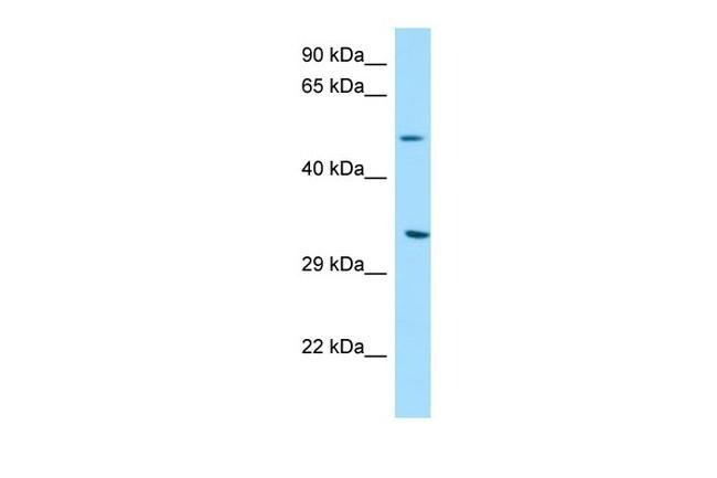 DPAGT1 Antibody in Western Blot (WB)