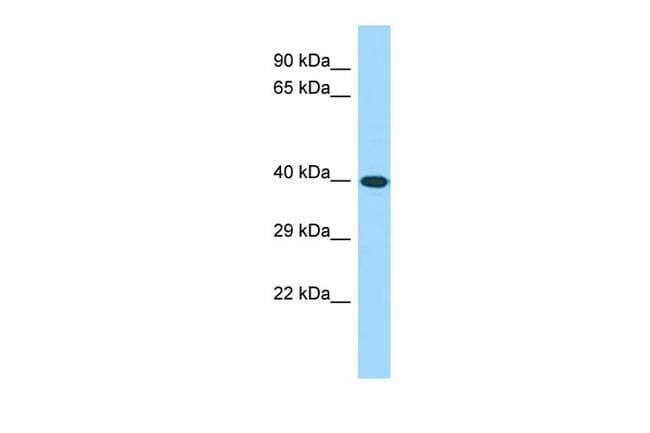 CWC25 Antibody in Western Blot (WB)
