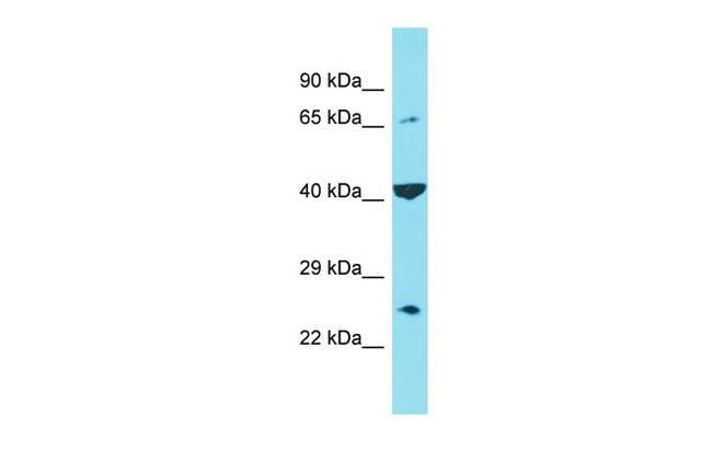 C6orf120 Antibody in Western Blot (WB)