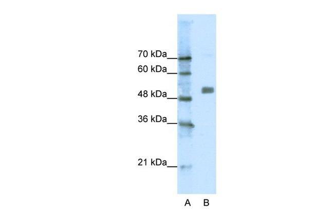 CHRNA9 Antibody in Western Blot (WB)