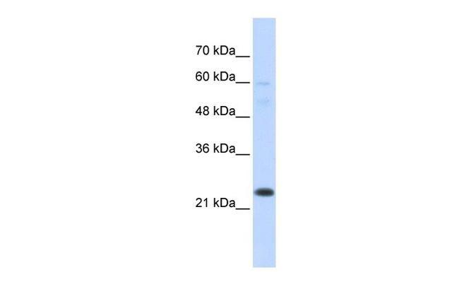 TAF12 Antibody in Western Blot (WB)