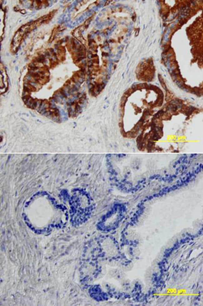 Angiopoietin 1 Antibody in Immunohistochemistry (Paraffin) (IHC (P))