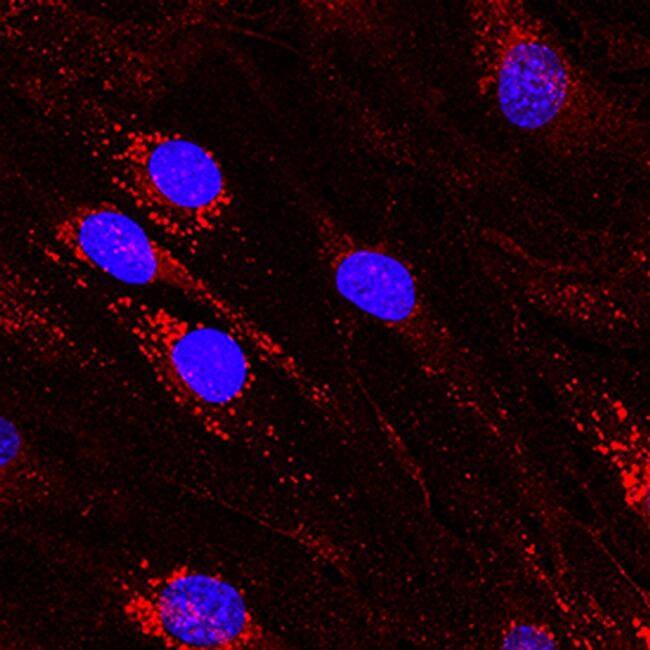 DLL4 Antibody in Immunocytochemistry (ICC)