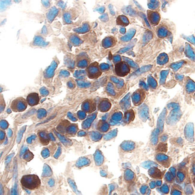 IL-15 Antibody in Immunohistochemistry (Frozen) (IHC (F))