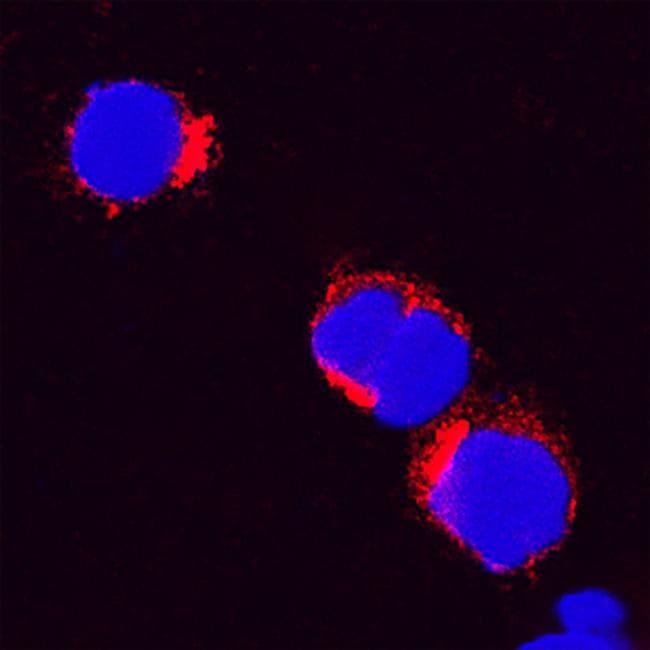 IL-8 (CXCL8) Antibody in Immunocytochemistry (ICC/IF)