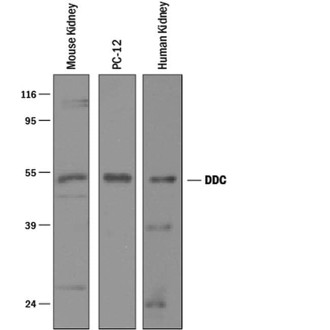 DOPA Decarboxylase Antibody in Western Blot (WB)