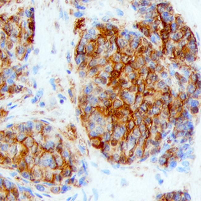 LY6K Antibody in Immunohistochemistry (Paraffin) (IHC (P))