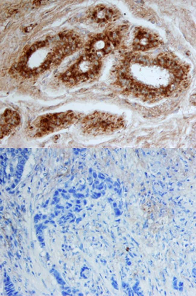 CELSR2 Antibody in Immunohistochemistry (Paraffin) (IHC (P))