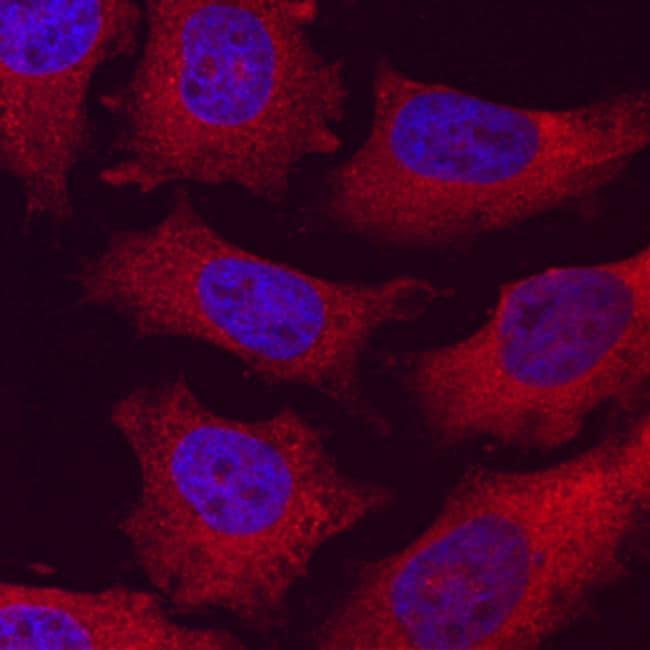 C2CD3 Antibody in Immunocytochemistry (ICC)
