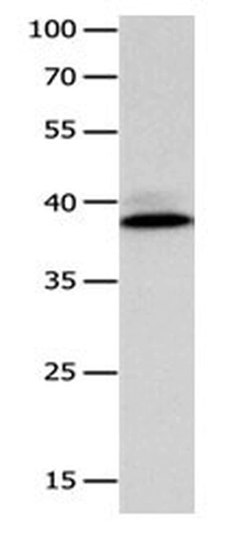CFHR1 Antibody in Western Blot (WB)