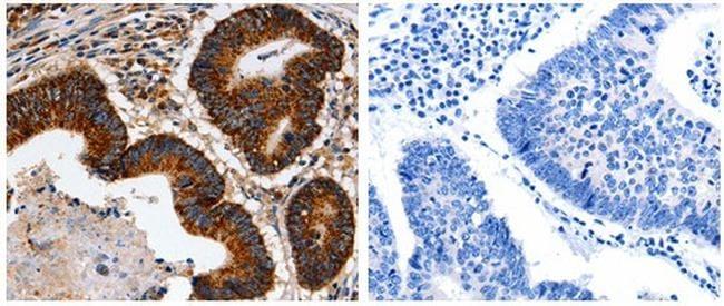 HSP90B2P Antibody in Immunohistochemistry (Paraffin) (IHC (P))