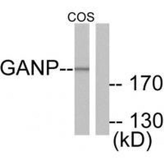 GANP Antibody in Western Blot (WB)