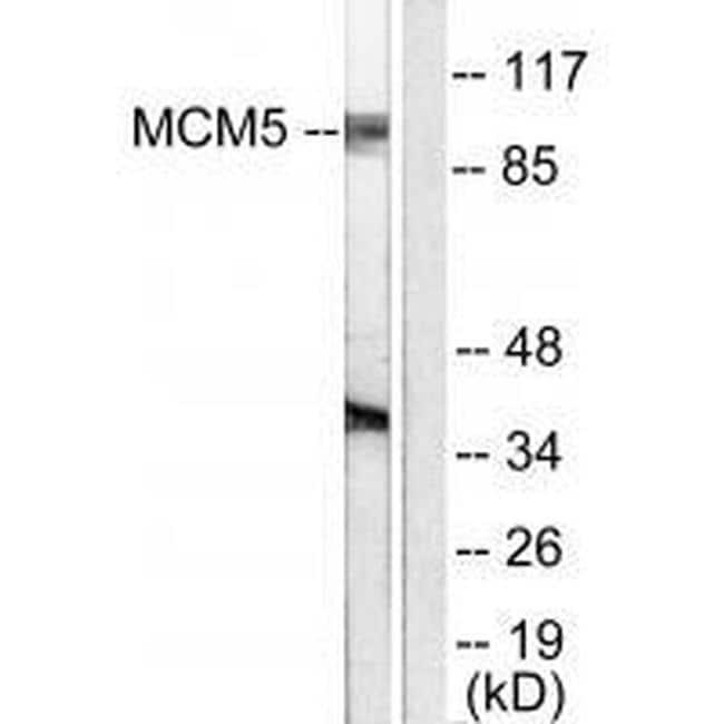 MCM5 Antibody in Western Blot (WB)