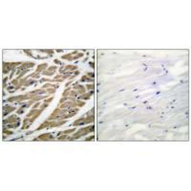 Sodium Channel Pan Antibody in Immunohistochemistry (Paraffin) (IHC (P))