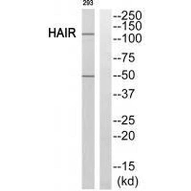 Hairless Antibody in Western Blot (WB)