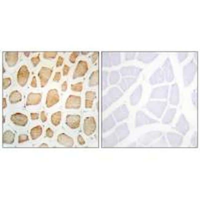 alpha Actinin 2/3 Antibody in Immunohistochemistry (Paraffin) (IHC (P))