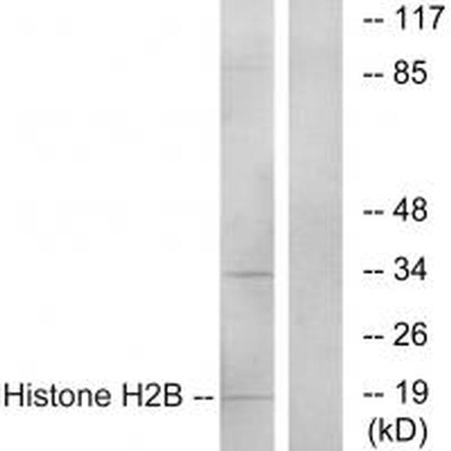 HIST1H2BH Antibody in Western Blot (WB)