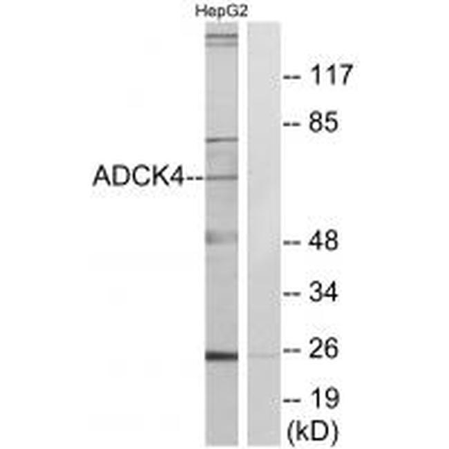 ADCK4 Antibody in Western Blot (WB)