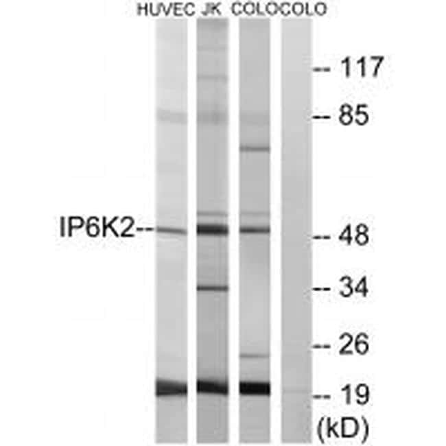 IP6K2 Antibody in Western Blot (WB)