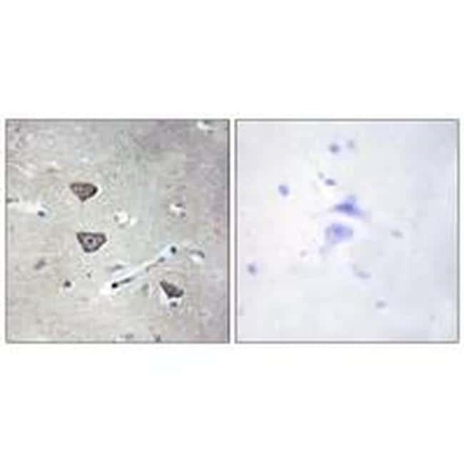 HTR2C Antibody in Immunohistochemistry (Paraffin) (IHC (P))