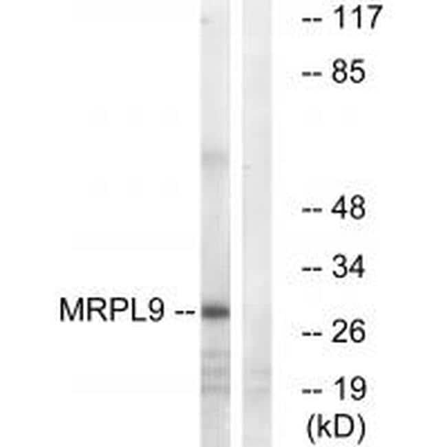 MRPL9 Antibody in Western Blot (WB)