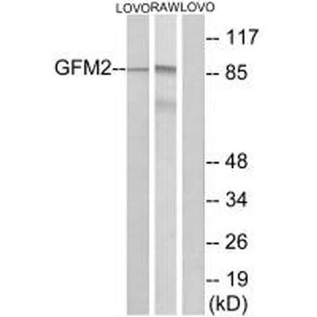 GFM2 Antibody in Western Blot (WB)