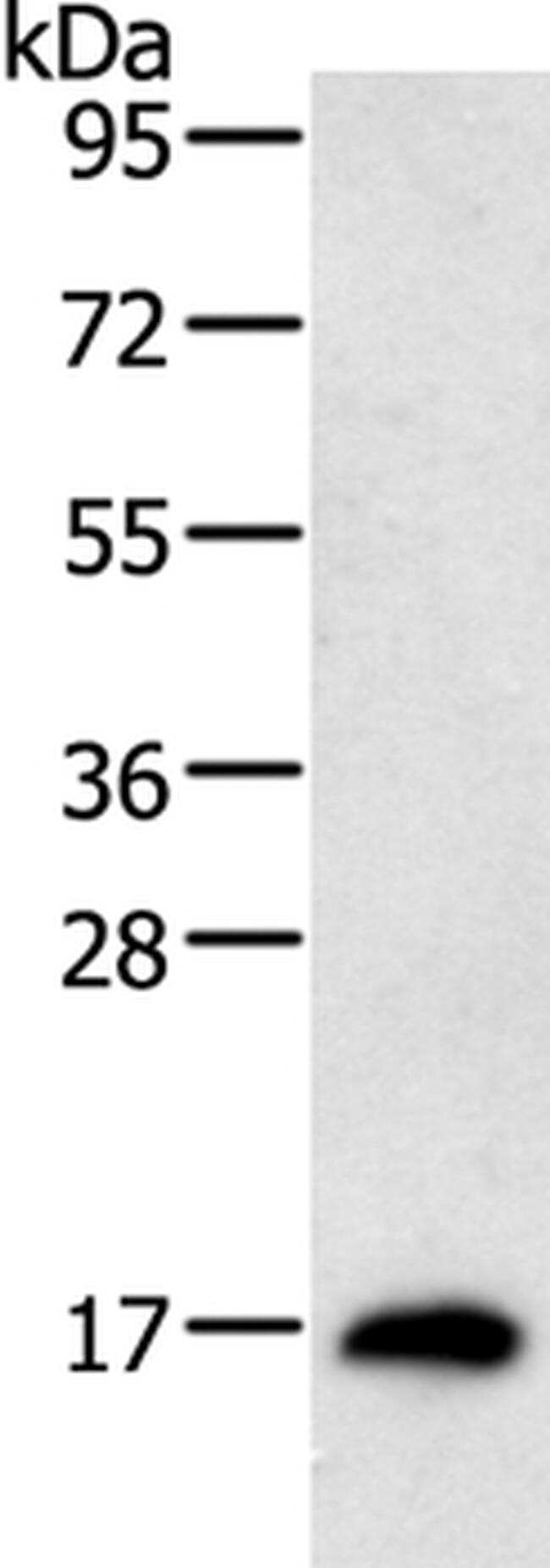 RAMP1 Antibody in Western Blot (WB)