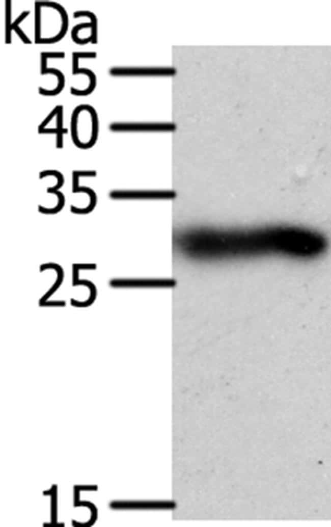 SPIN2 Antibody in Western Blot (WB)