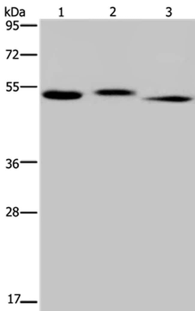 HYAL3 Antibody in Western Blot (WB)