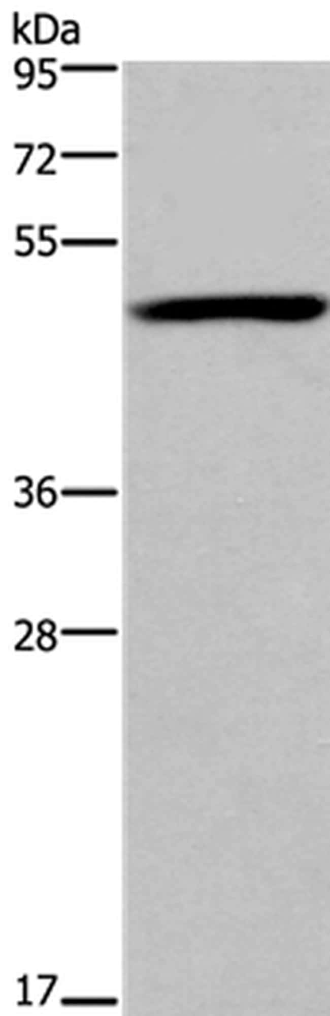 FOXD1 Antibody in Western Blot (WB)