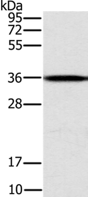 CENPV Antibody in Western Blot (WB)