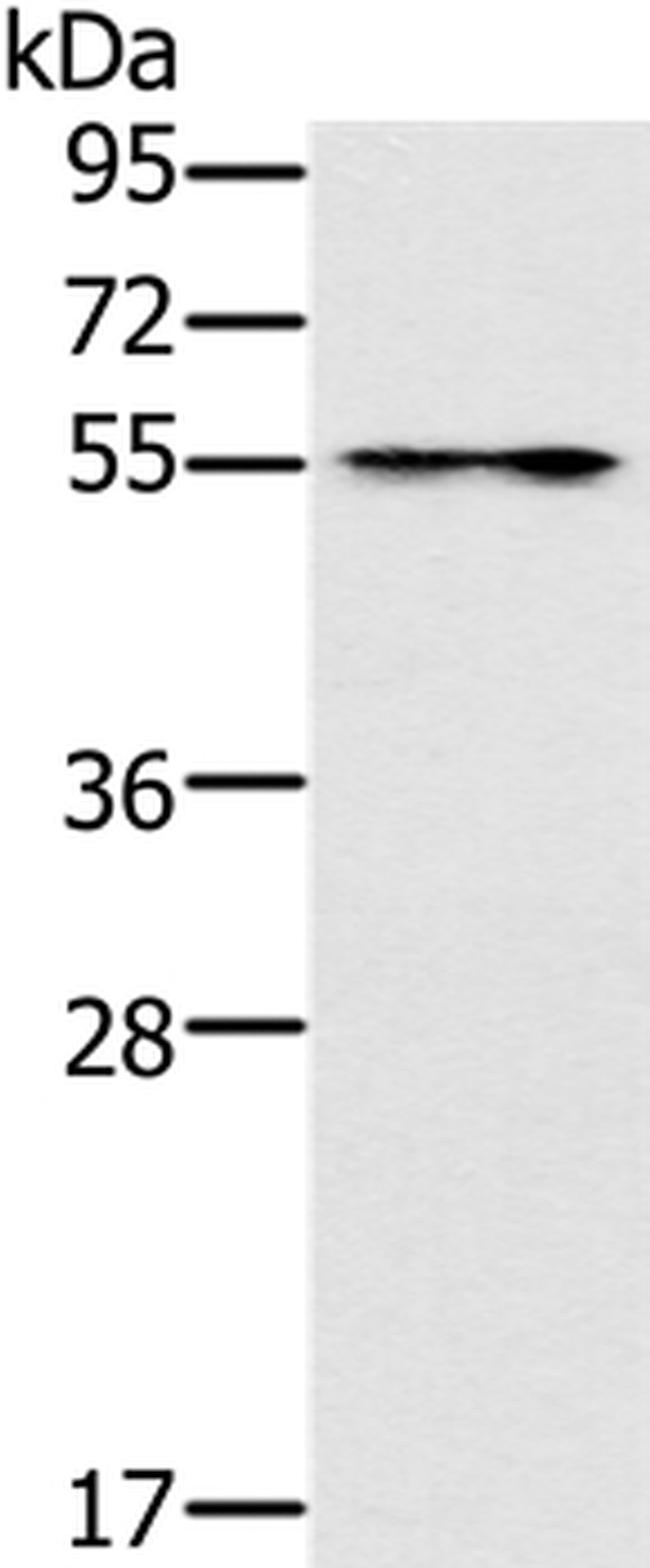 PUS10 Antibody in Western Blot (WB)