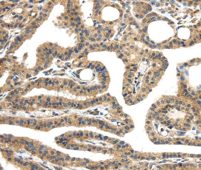 TMPRSS11E Antibody in Immunohistochemistry (Paraffin) (IHC (P))