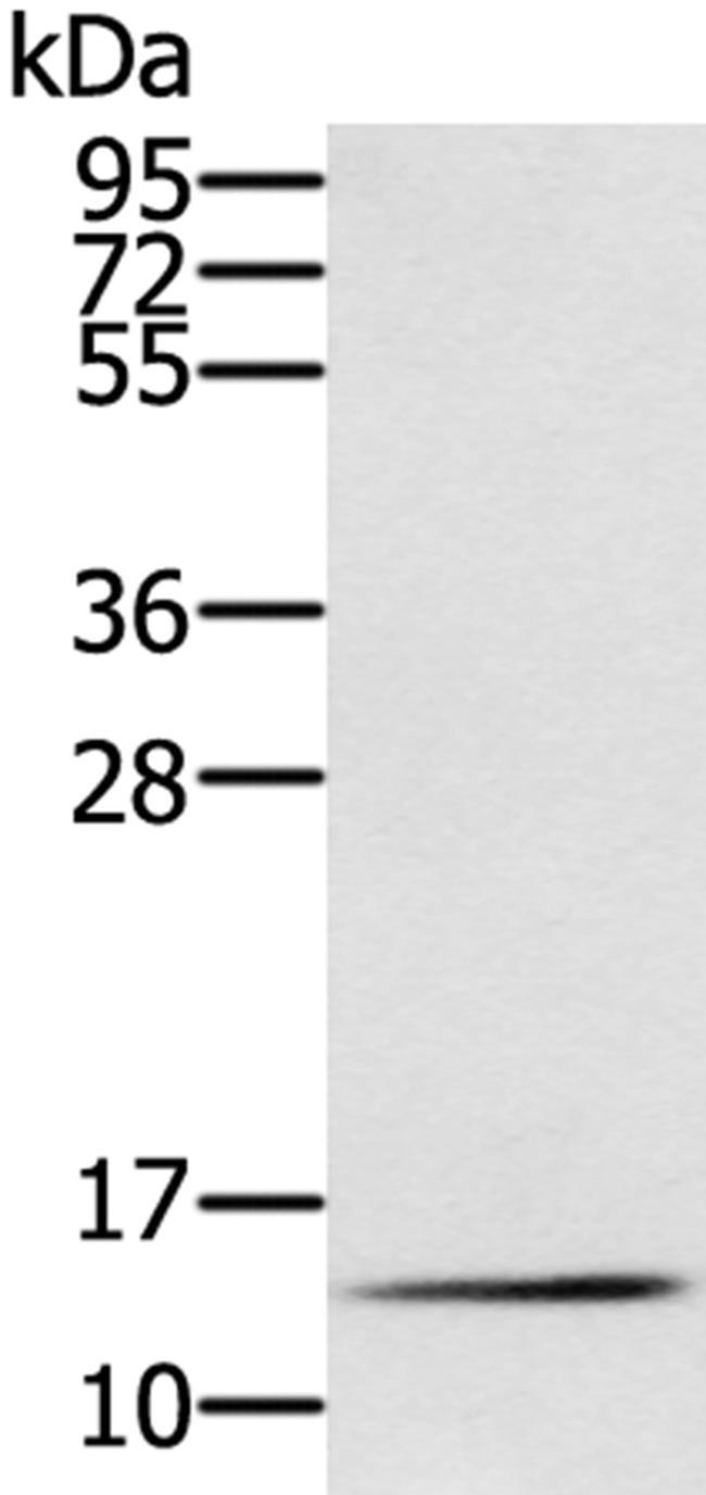 RNF7 Antibody in Western Blot (WB)