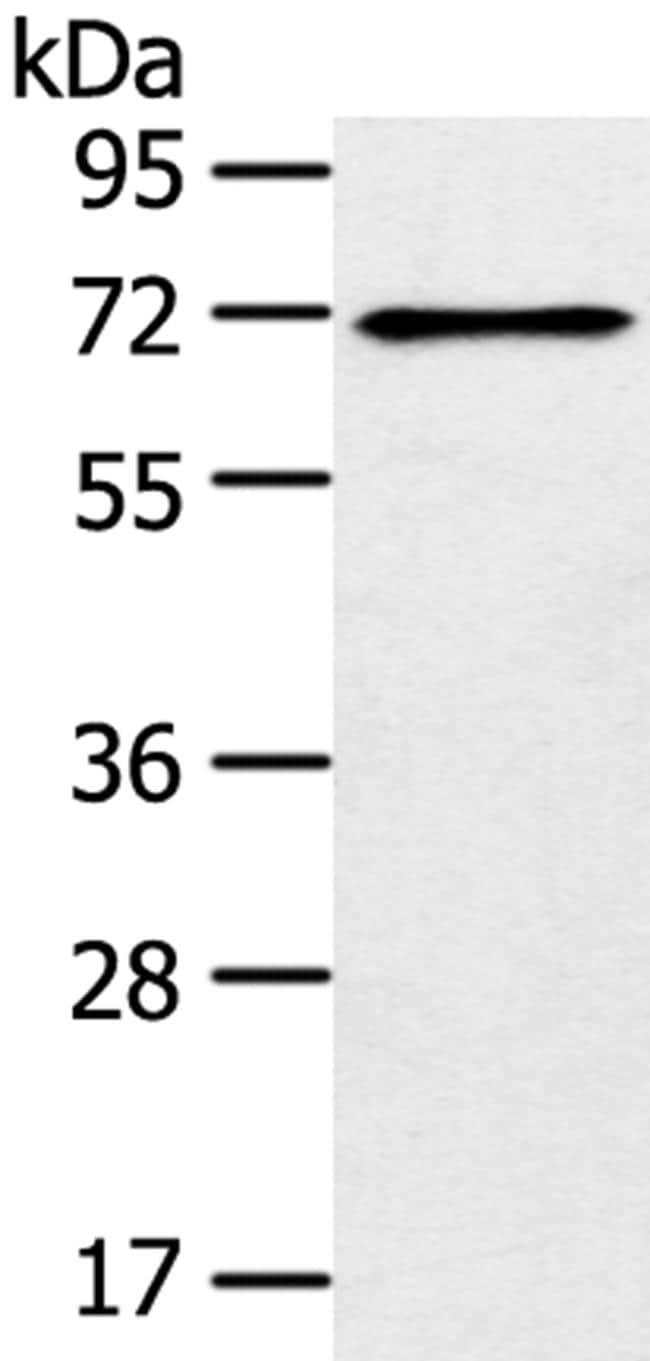 TRIM47 Antibody in Western Blot (WB)