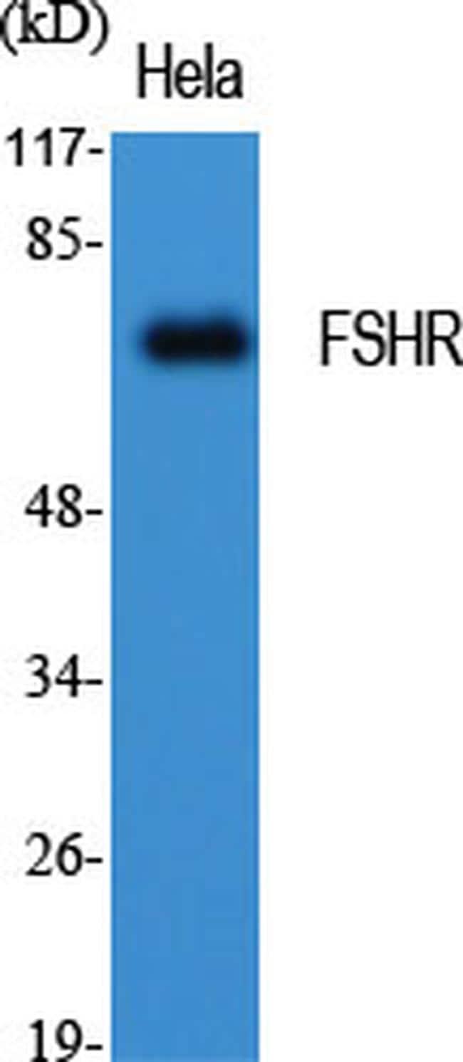 FSHR Antibody in Western Blot (WB)