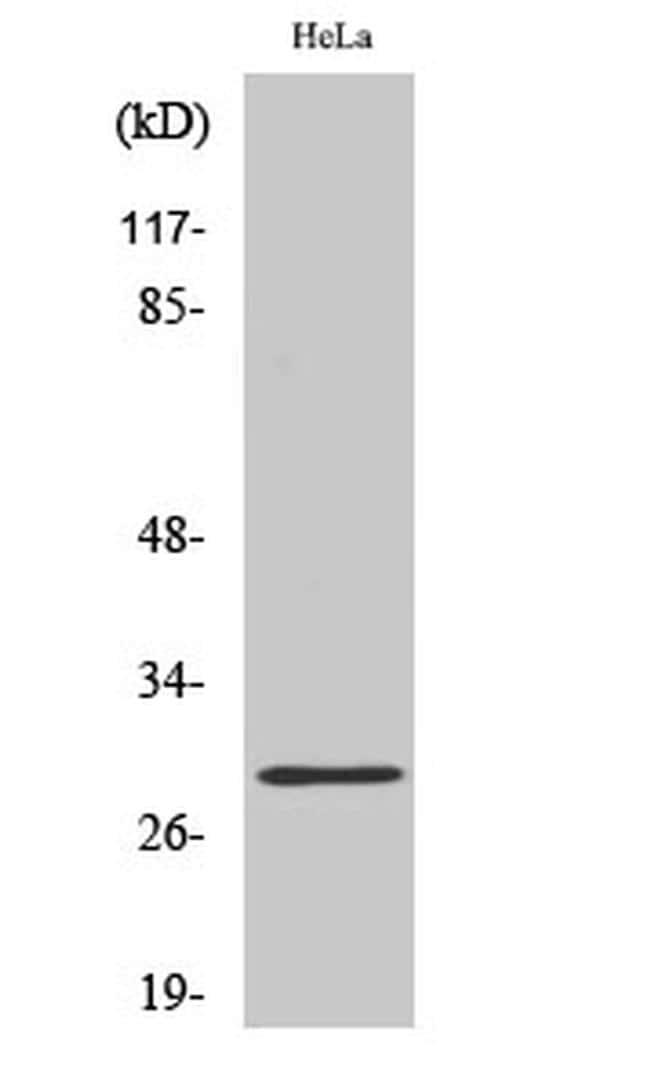 RAB20 Antibody in Western Blot (WB)