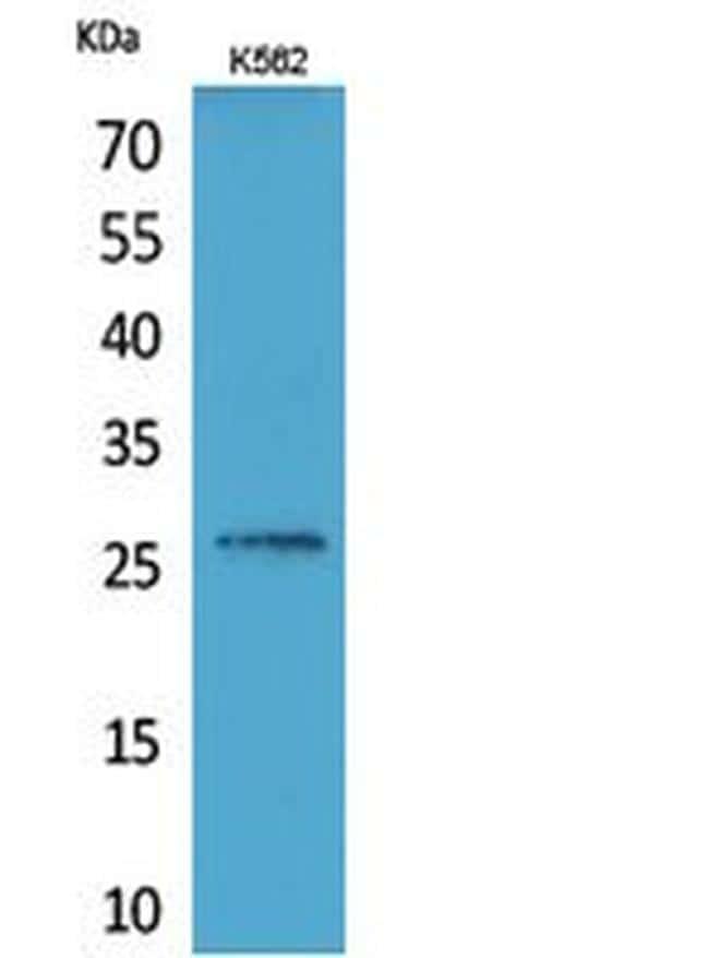 FGF16 Antibody in Western Blot (WB)