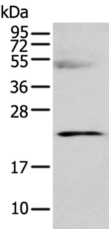 C8G Antibody in Western Blot (WB)