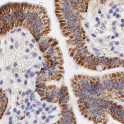 OTC Antibody in Immunohistochemistry (IHC)