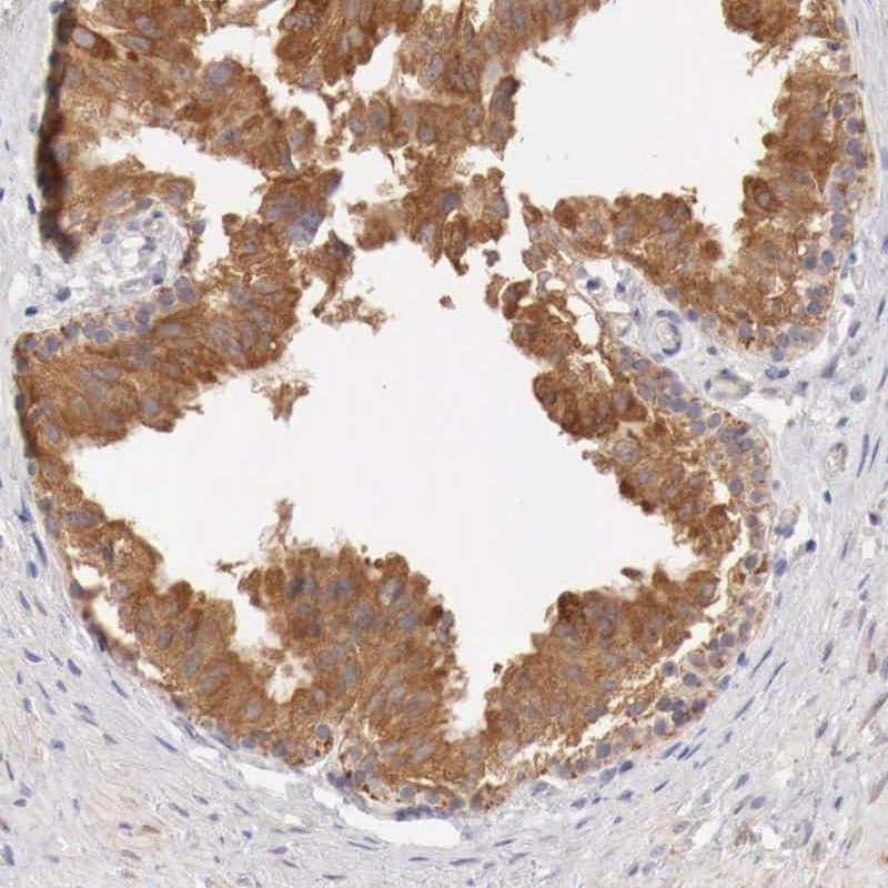 NSDHL Antibody in Immunohistochemistry (IHC)