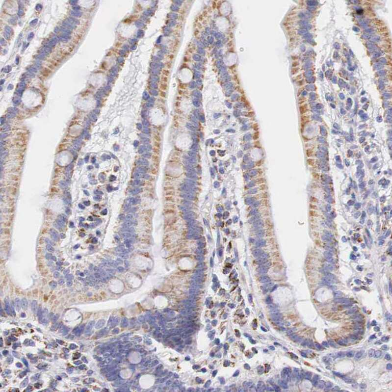 IDH3G Antibody in Immunohistochemistry (IHC)